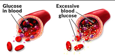Blood Glucose: What It Is, How It Works, Why It Matters